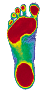 Orthotic foot scan